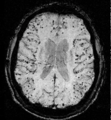 Cerebral amyloid angiopathy (CAA)-MRI.png