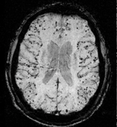 MRI scan showing Cerebral amyloid angiopathy. The beta-amyloid deposits show up as black 'dots' spread throughout the brain's outer layer, the cerebral cortex.