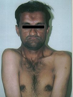 Cleidocranial dysplasia face and shoulders.jpg