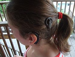 Cochlear implant2.jpg