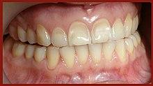 Acid erosion teeth