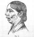 Diseases of the jaw, etching,1887. Wellcome L0030225.jpg