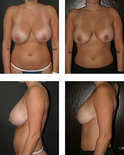 Dr. Placik Breast Reduction.jpg