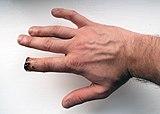 Index finger amputation.jpg