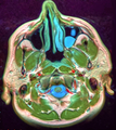 MRI 114124 rgbca.png