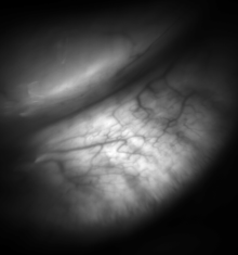 Meibomian glands in the lower eyelid imaged under amber light to show vasculature support and the gland structure [epiCam].