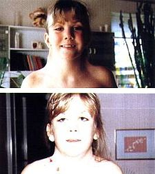 Krk u Turnerova syndromu (nahoře pacientka před operací, dole po zákroku)