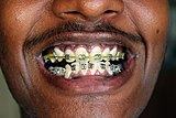 Teeth Braces (1).jpg