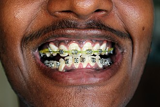 Dental braces - Application of dental braces