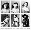 W. B. Weidler, 'Some ocular manifestations of hysteria' Wellcome L0020585.jpg