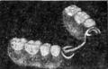 WeirdTalesv36n1pg127 Partial False Teeth.png