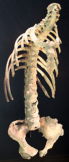 Ankylosing spondylitis a type of arthritis in which there is long term inflammation of the joints of the spine