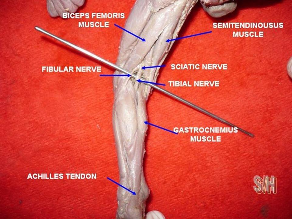 Achilles tendon of foetus