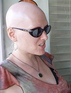AlopeciaTotalis... Alopecia Areata Totalis