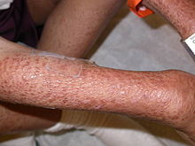 Multiple reddish-brown papules coalescing over the right arm of a boy