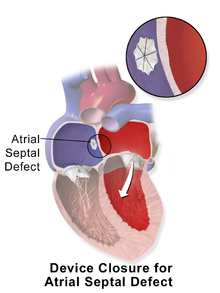 Adult atrial defect septal agree