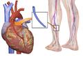 Blausen 0466 Heart Bypass Surgery.png