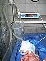 CPAP on newborn.JPG