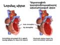 Cardiomyopathy Dilated Armenian.png