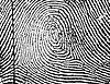 Central Pocket Loop Whorl in a right little finger.jpg