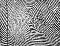 Central Pocket Loop Whorl in a right little finger.jpg