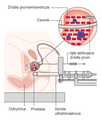 Diagram showing how you have radioactive seed implants as a treatment for prostate cancer CRUK 420 pl.png