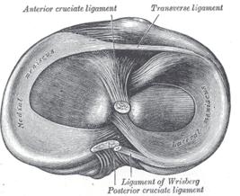 что такое гигрома сустава