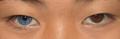 Heterochromia plos.png