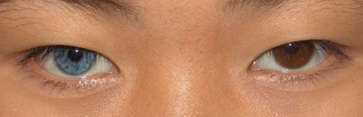 Heterochromia plos
