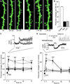 LTP Promotes a Selective Long-Term Stabilization and Clustering of Dendritic Spines - F 2.png
