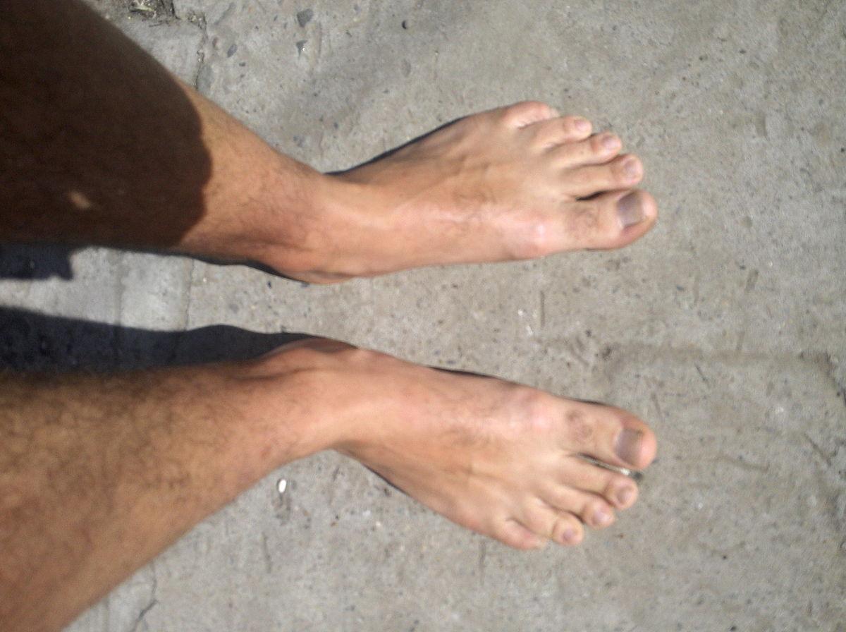 Micoza pe laba piciorului