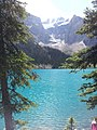Lake Louise in the Rocky Mountains, Alberta.jpg