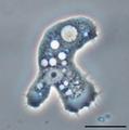 Parasite140120-fig3 Acanthamoeba keratitis Figure 3A.png