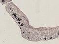 Pleioplana atomata (YPM IZ 073814) 06.jpeg