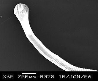 Raillietina tetragona - R. tetragona anterior part
