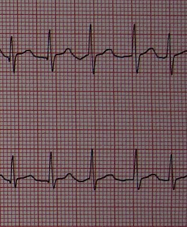 Atrial fibrillation Rapid, irregular beating of the atria of the heart
