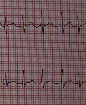Leads V4 and V5 of an electrocardiogram showing atrial fibrillation with  somewhat irregular intervals between heart beats, no P waves, and a heart  rate of ...