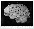 Site of lesion in various forms of aphasia. Wellcome L0023664.jpg