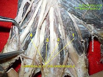 Flexor pollicis brevis muscle - Image: Slide 1yyy