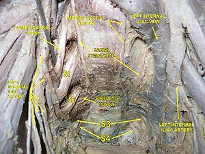 Internal iliac vein - Image: Slide 2ERVA