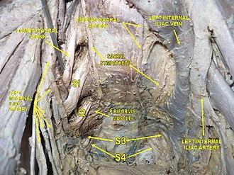 Piriformis muscle - Image: Slide 2ERVA