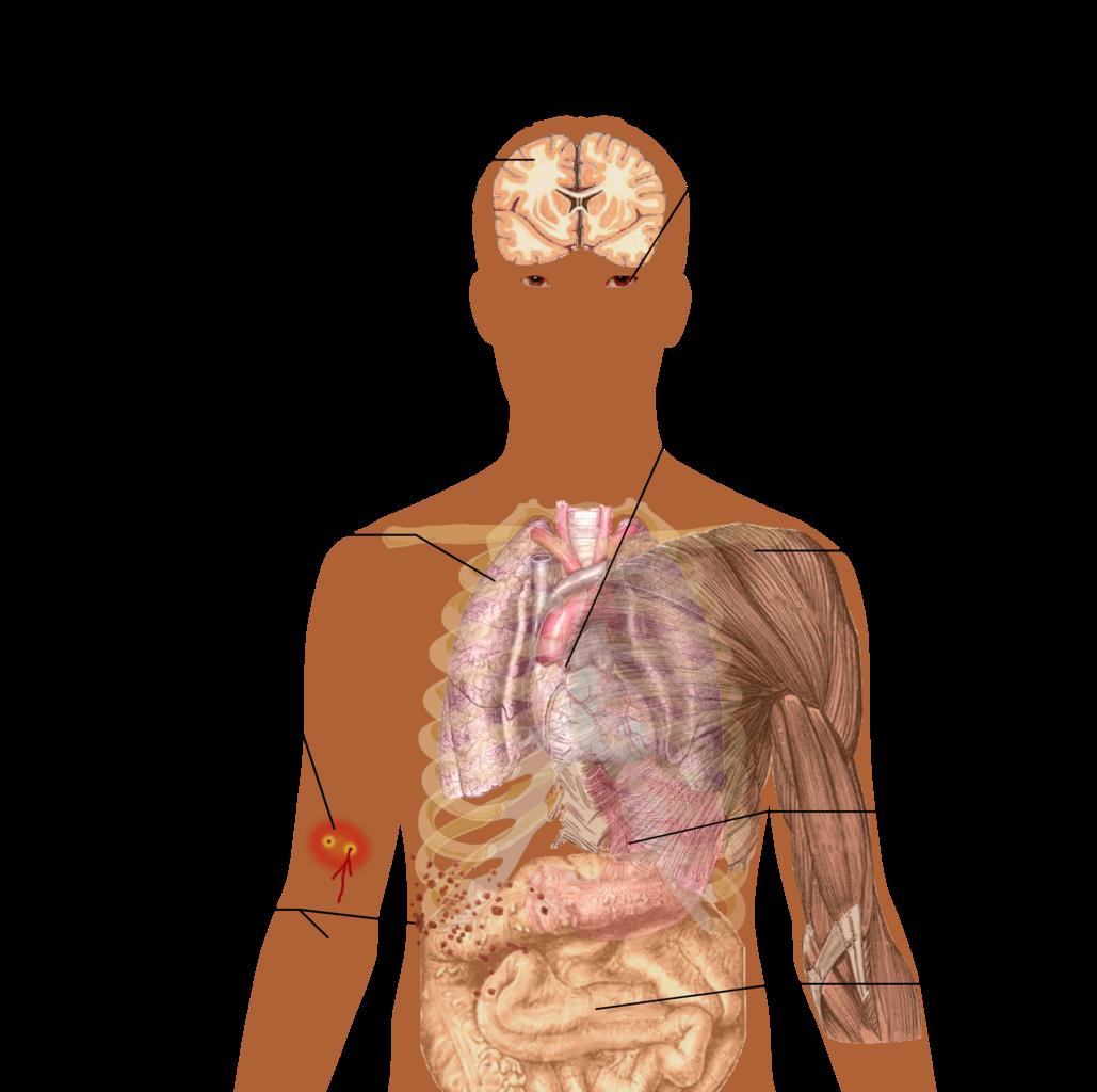 File:Snake bite symptoms.png - Wikimedia Commons