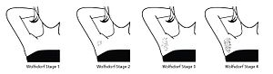 Underarm hair - This is an illustration demonstrating the Wolfsdorf Staging for axillary hair development in children.