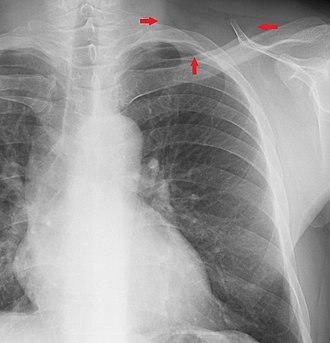 Supraclavicular fossa - Image: Supraclavicular fossa on chest X ray