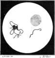 Tropical Diseases - Fig 4.png
