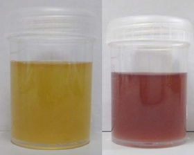 Cloudy Urine After Drinking Pomegranate Juice