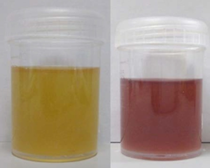 Urine of patient with porphyria.png