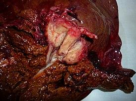 Холангиокарцинома мкб 10