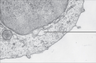 Endoplasmic reticulum - Electromicrograph showing smooth ER (arrow) in mouse tissue, at 110,510 x magnification.