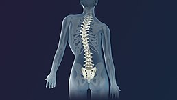 3D Medical Animation still shot of Scoliosis